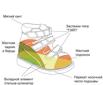 Стабилизирующая ортопедическая обувь с высокими жесткими берцами рекомендуется для детей с наличием сформировавшейся вальгусной или варусной деформацией стопы и при ДЦП.