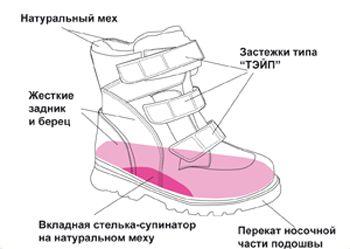 Стабилизирующая ортопедическая обувь с высокими жесткими берцами рекомендуется для детей с наличием сформировавшейся вальгусной или варусной деформацией стопы и при ДЦП. Высокий жесткий берец фиксирует не только таранно-пяточный, но и голеностопный сустав, что при постоянном ношении этой обуви формирует правильное развитие суставных поверхностей и препятствует дальнейшему развитию деформации.